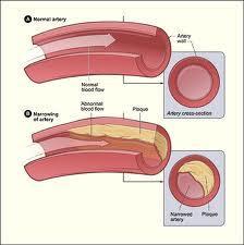 Cholesterol deposition