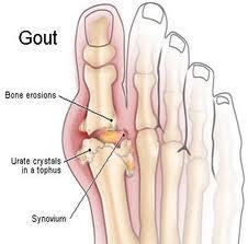 Useful Gout Stool Plans Pergola Wood Plan